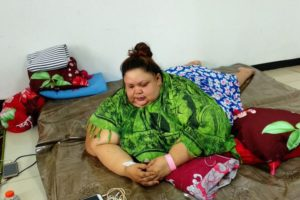 Titi Wati Penderita Obesitas