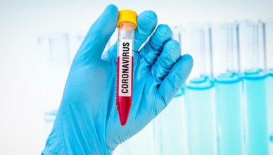 Ulasan Seputar Corona Virus yang Harus Diputus Mata Rantainya